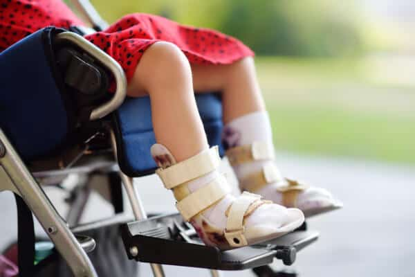 Medical Negligence for Cerebral Palsy